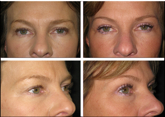 Blepharoplasty Eyelid Pictures|Plastic Surgery Before ...