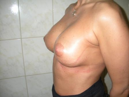 Teardrop breast augmetation after, implants size - cc 380