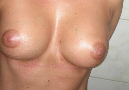 Teardrop breast augmetation after, implants size - cc 360