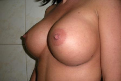 breast augmentation surgery in Hungary after