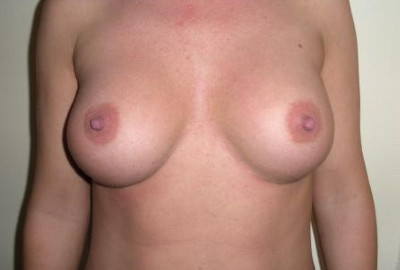 breast augmentaion surgery in Budapest before