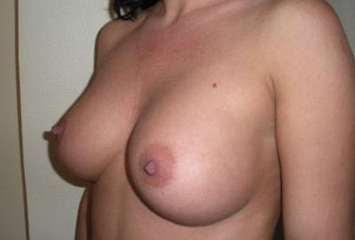 breast aumentation surgery in Budapest before