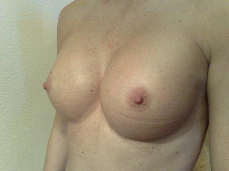 perfect breast augmentation surgery in Hungary after