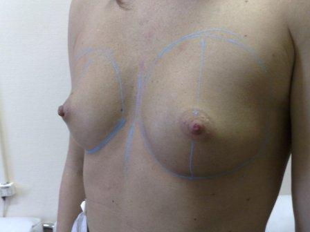 perfect breast augmentaion surgery in Budapest before