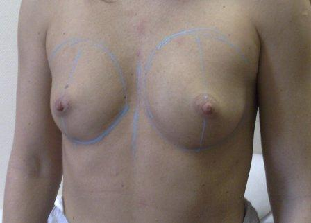 perfect breast aumentation surgery in Budapest before