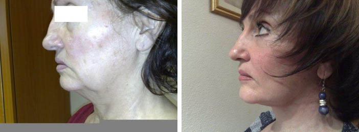 Full Facelift Before and After Profile