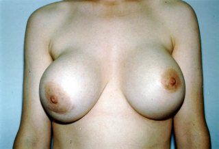 Breast Before Implant Removal