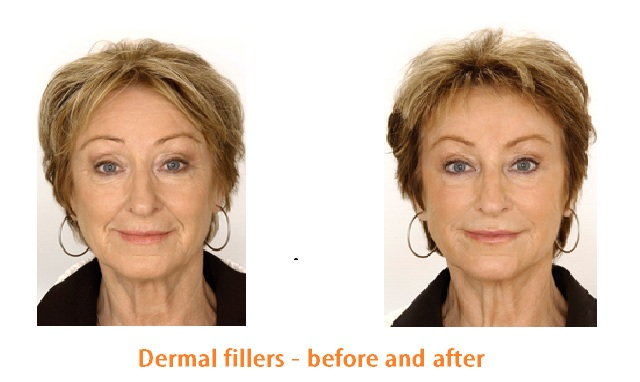 Dermal fillers and B0t0x Before and After