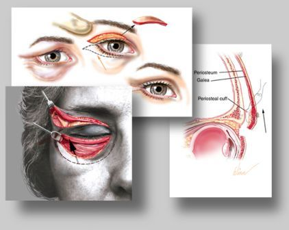 Eyelid Surgery Abroad in Budapest