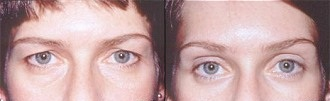 Upper Eyelid Surgery Abroad Before and After
